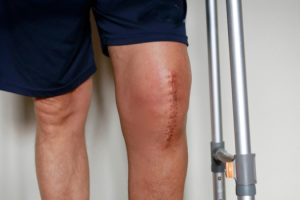 Treatments to Help Avoid Knee Replacement Surgery Duluth, GA